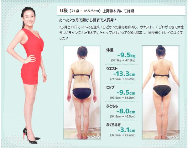 エルセーヌ 口コミ 評判 痩身エステ